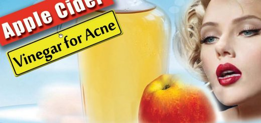 Apple cider Vinegar for Acne – How To Heal Acne With Apple Cider Vinegar – Health Benefits 2016