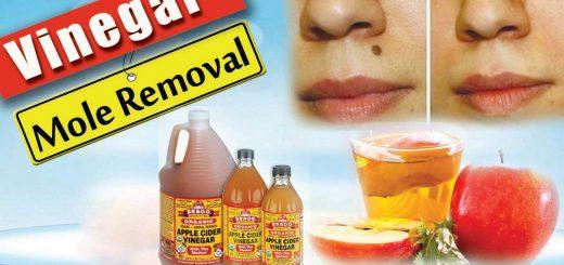 Apple Cider Vinegar Mole Removal | is apple cider vinegar treatment for mole removal?